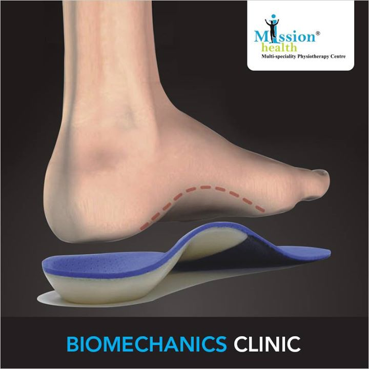 Flat Foot ?? Collapsed Arches ?? call today on 8530720720 for appointment with our Foot Specialist.